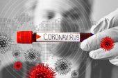 Corona Virüs Sebebiyle Gözaltına Alınan Kişi Sayısı 16'ya Yükseldi